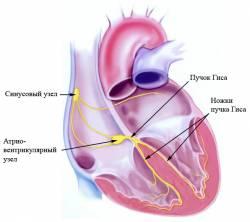 кардио-дефибриллятор